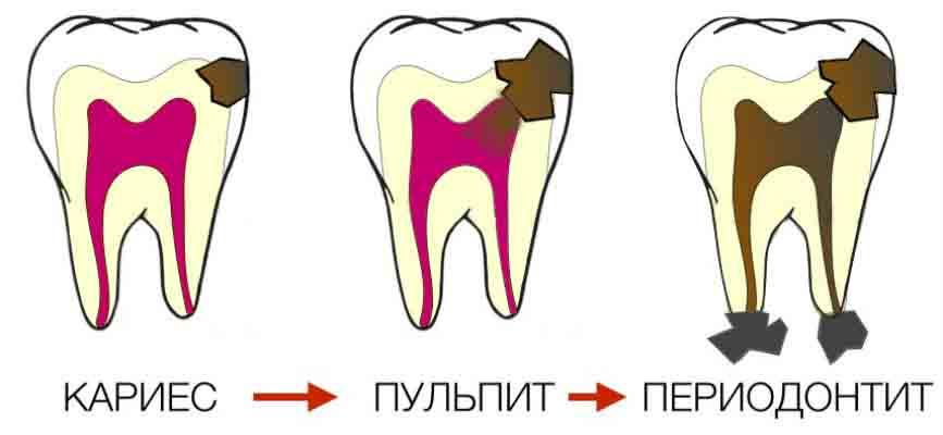 Здоровье ваших зубов и десен